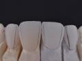 Stillo-aplicacao-ceramica-caso-3-2