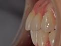 stillo-aplicacao-ceramica-caso5-4