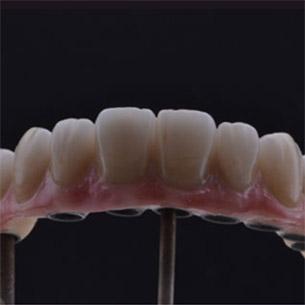 O segredo de um bom trabalho de prótese sobre implante está no planejamento e esse planejamento deve incluir a parte laboratorial.